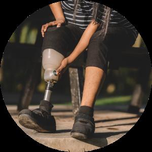 woman fixing her right prosthetic leg
